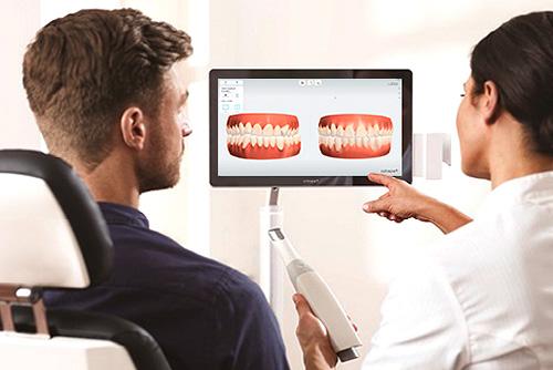 Digitaler Zahnabdruck 3shape trios in der Zahnarztpraxis Dr. Büttner in Hildisrieden